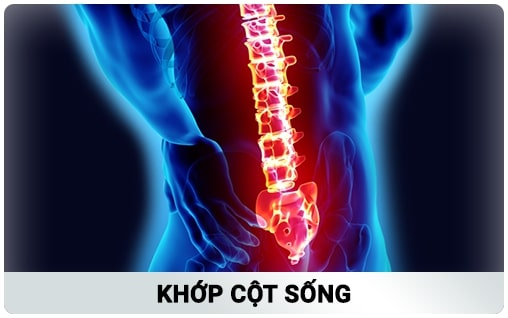 Khớp Cột Sống